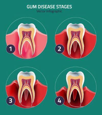 Diagram about the stages of gum disease | Dentist 95032
