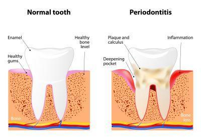 Periodontal disease diagram | Dentist Los Gatos CA