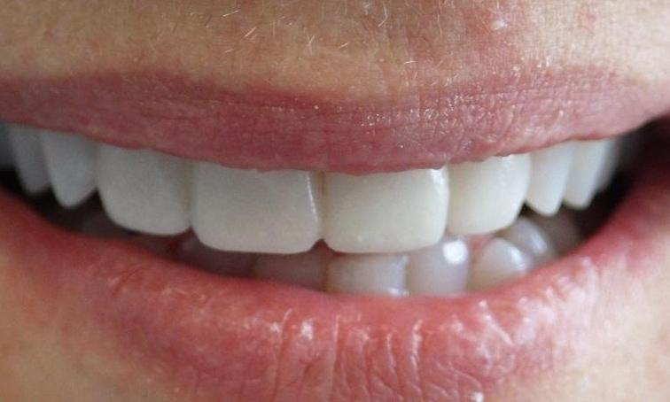Bright smile after veneers l Veneers Los Gatos, CA