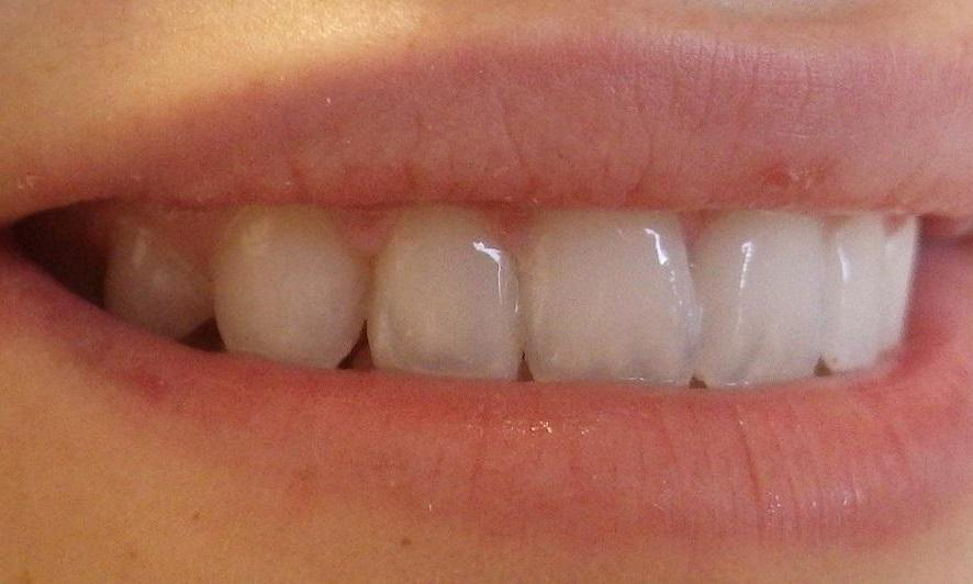 complete smile after dental work l nicole e pagonis, dds