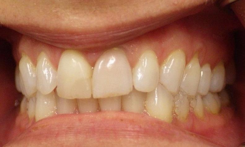 Discolored teeth before veneers l dentist 95032