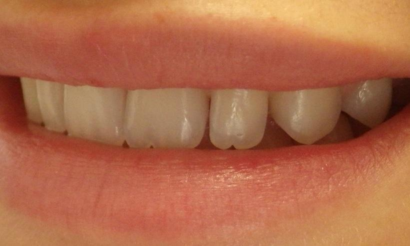 beautiful smile after resin composite fillings l los gatos dentist