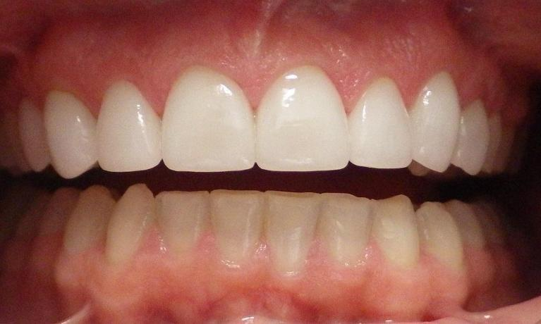 Smile-Enhancement-Lab-Fabricated-Porcelain-Veneers-After-Image